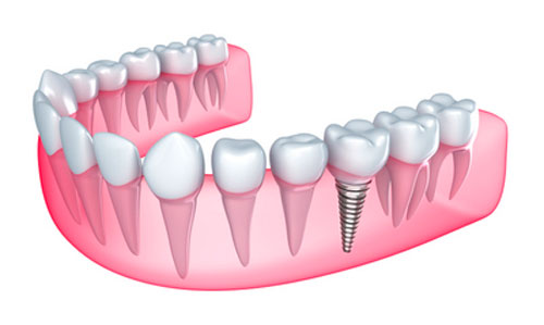 Dental Implants Can Improve the Health of Your Jaw Bone
