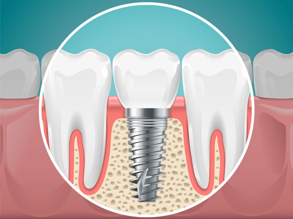 Diagram of a tooth replaced with a dental implant